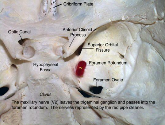 V2 Maxillary Nerve (sensory) in foramen rotundum                                                                                                                                                      More