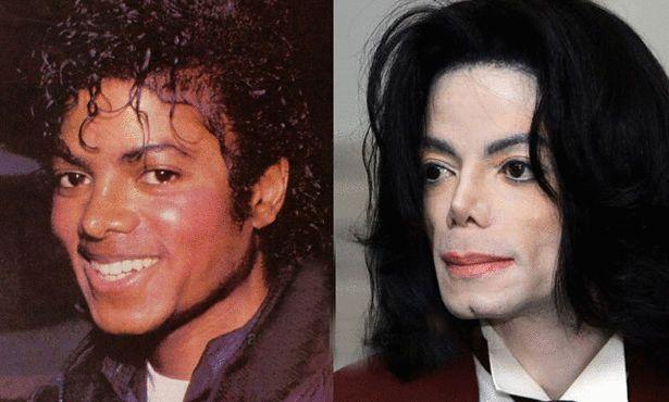 Michael Jackson - Les stars avant et après la chirurgie esthétique !