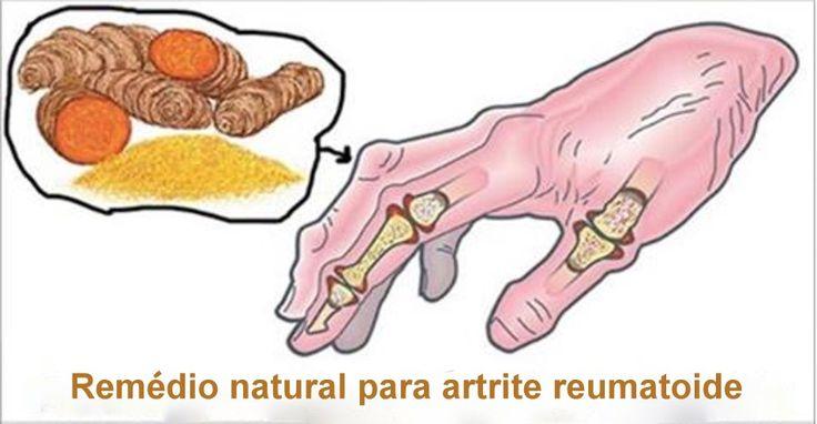 A artrite reumatoide é uma inflamação que atinge principalmente os ligamentos menores, como os dedos e as articulações dos pés.Também é possível afetar cotovelos, joelhos, tornozelos, quadris e ombros.