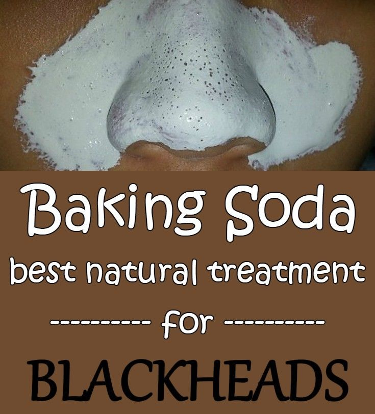 Baking soda - Best natural treatment for blackheads.