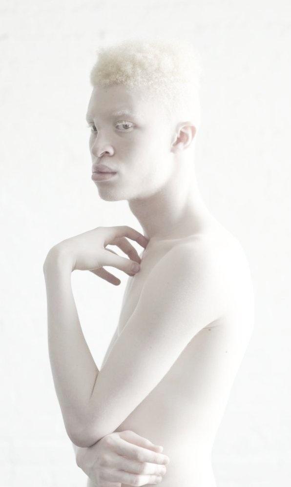 Shaun Ross Albino Model