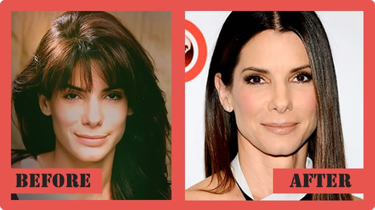 Sandra Bullock Plastic Surgery Before And After Sandra Bullock Plastic Surgery #SandraBullockplasticsurgery #SandraBullock #celebritypost