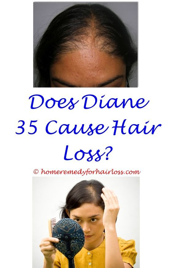 how to stop hair loss during pregnancy - canine liver disease hair loss.golden retrievers hair loss prednisone benefits of drinking water for hair loss patch of hair loss on front thigh 1776922896