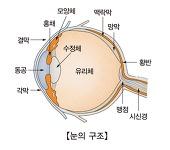 백내장 Cataract