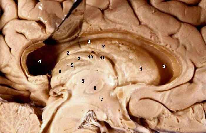 245 best Neurorad images on Pinterest | Med school ... Adhd And Limbic System