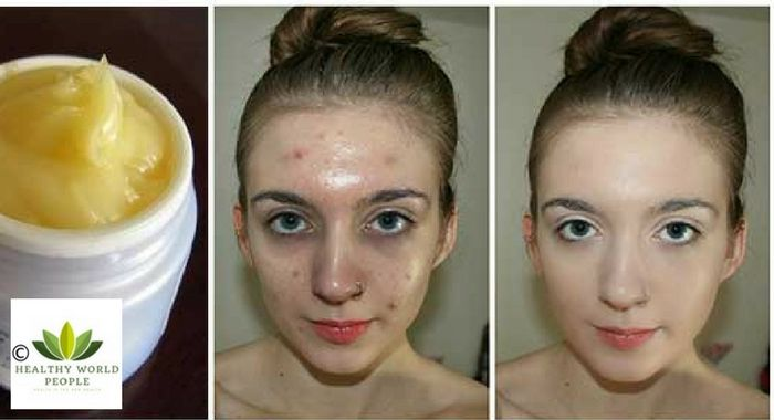 Multivitamin Serum Face Pack To Get Ageless Beautiful Skin - Healthy World People-In this post I have shared a simple, purely natural