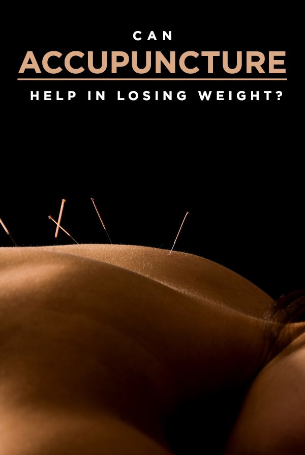 Acupuncture is an effective method for weight loss. www.hpjax.com/weightloss