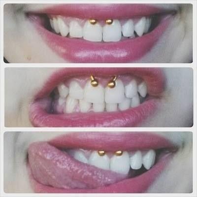 Smiley piercing :D