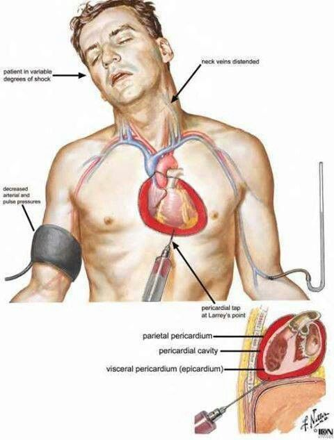 cardiac tamponade | nursing stuff | pinterest, Skeleton