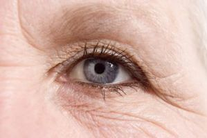 how to get rid of eye hollows