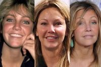 jennifer aniston before and after nose job | Plastic Surgery Before And After Kelly Rowland Nose Job | Personal …