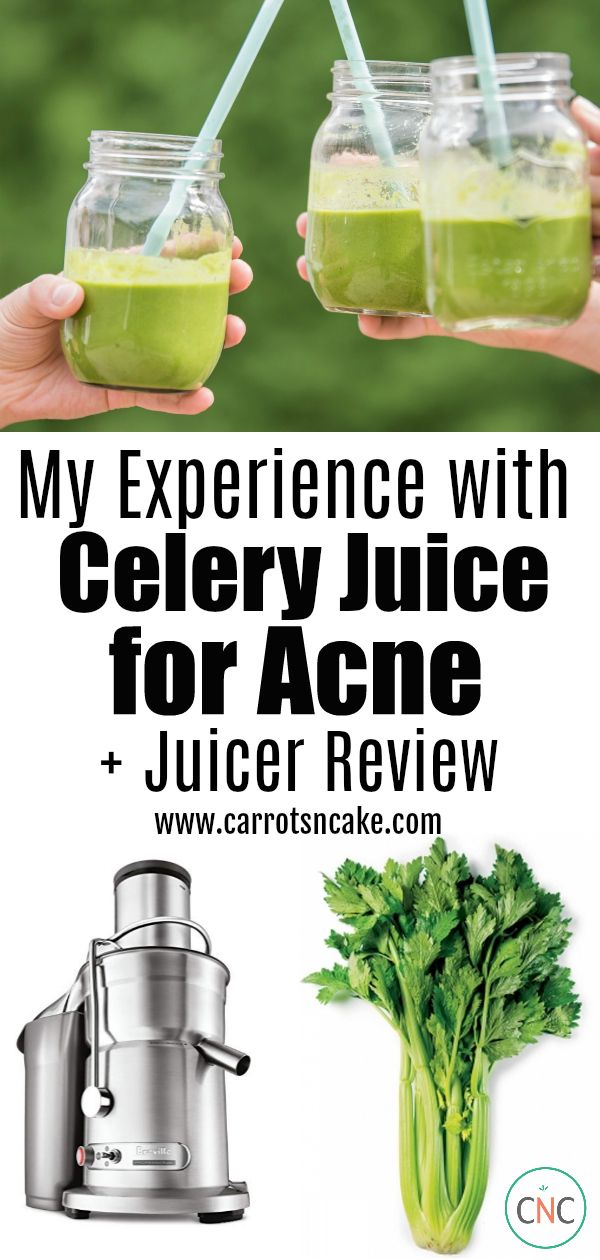 My Experience with Celery Juice for Acne + Juicer Review