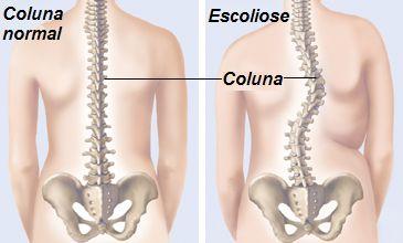 Clínica de Massagem Terapêutica e Quiropraxia em São Jose SC, Massoterapia: ESCOLIOSE: CAUSAS, SINTOMAS E TRATAMENTO,