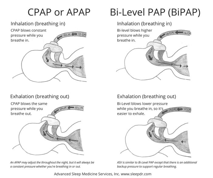 What is a CPAP Machine? (Difference Between CPAP, APAP, BiPAP and ASV)   http://www.sleepdr.com/blog/what-is-a-pap-machine-cpap-apap-bipap-asv