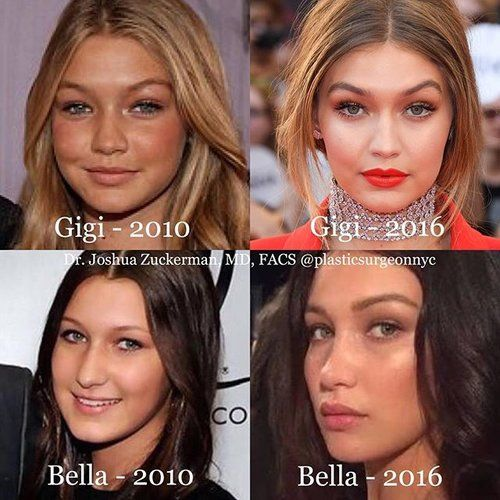 Gigi and Bella Hadid are famous sisters. The light, makeup, and angles are different in each photo and one can never be sure without confirmation from the person herself. However, I would say with relatively high confidence that Bella has undergone a rhinoplasty to have her dorsum reduced and the tip of her nose rotated upward and refined. Before, her drooping tip has been corrected, and the nose is overall shorter. For Gigi, it is less clear.