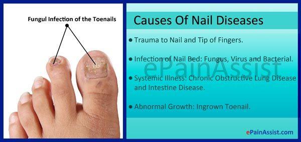 Nail Diseases  Read: http://www.epainassist.com/skin/nail-diseases