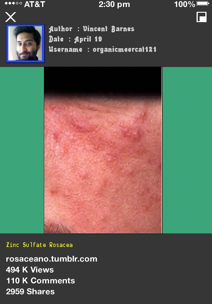 Zinc Sulfate Rosacea 053349 - Rosacea Free Forever.
