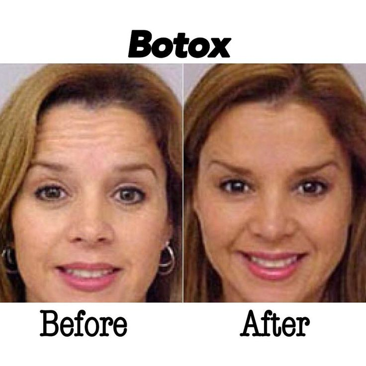Are wrinkles getting you down? We have the solution! Call for your free consultation (909) 987-0899 Procedure: Botox  Result: Removes wrinkles by temporarily paralyzed muscles.