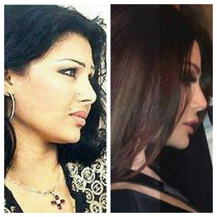 Haifa wehbe beforeafter nose job lip injection chin