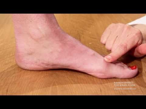 Kinesiotaping for Hallux Rigidus, Hallux Limitus, Bunion Pain, and Turf Toe is demonstrated. The goal is limit dorsiflexion of the big toe joint (first metat...