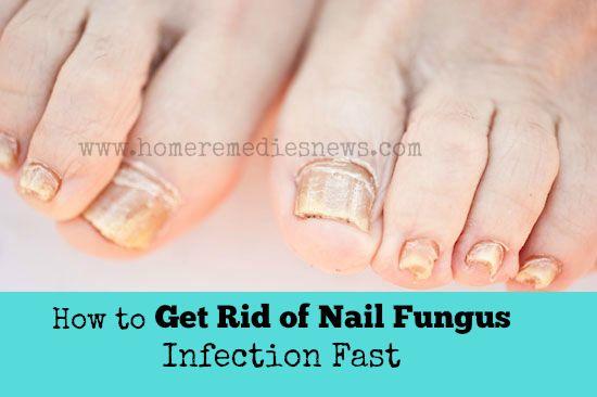 All Natural Way To Get Rid Of Toenail Fungus