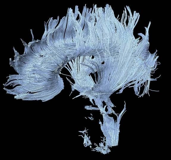 A brain-imaging method called diffusion MRI (magnetic resonance imaging) is relatively new to the field of neuroscience, though it shows promise as a diagnostic tool. Here, an image taken from the brain of a patient who suffered a stroke in the thalamus and midbrain, resulting in damage to certain axons (some are visible at the bottom of the image). Credit: Henning U. Voss and Nicholas D. Schiff, 2008.