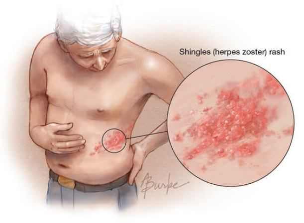 """Varicella-zoster, also known as """"shingles"""" is a disorder that originates from the varicella group of viruses. It lies """"dormant"""" in the body and can """"wake up"""" for a variety of reasons. Learn a little more about this disease and how to treat shingles naturally in the following article. Shingles: what to know Having shingles is…"""