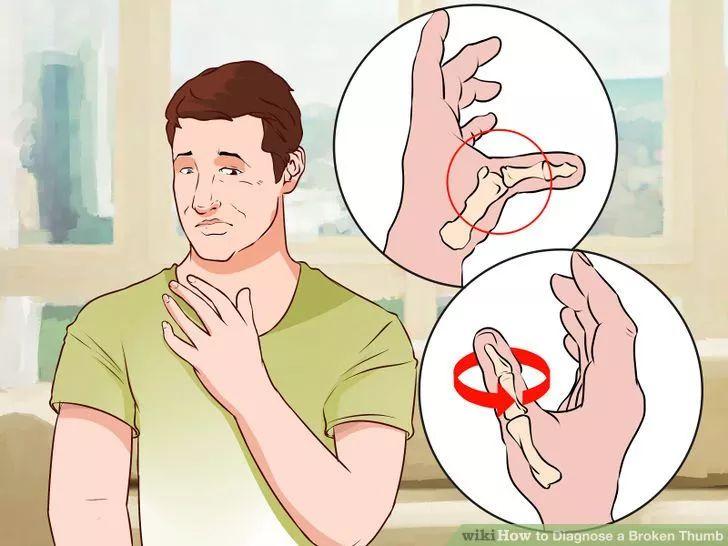 Image titled Diagnose a Broken Thumb Step 2