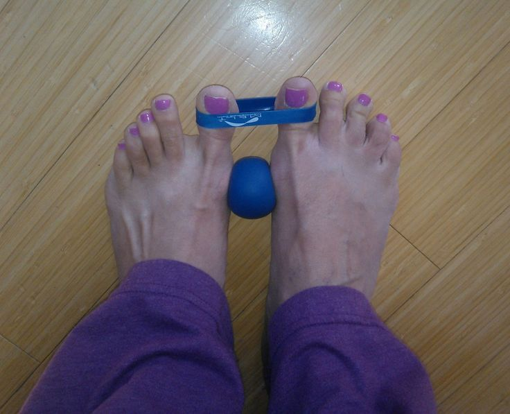 Painful bunions--be gone!