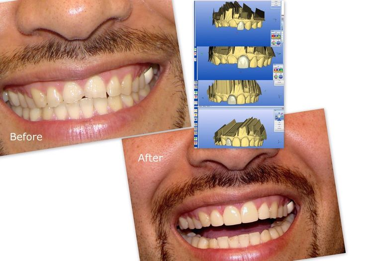 If you miss one or more front teeth then these can be bridged with CAD/CAM zirconium crowns. The unit price of zirconium crowns is 256 GBP. So, if you need to bridge one tooth gap the price of a 3 item zirconium bridge, which is 768GBP is lower than the price of a dental implant with zirconium crown on top. If you prefer bridges then one visit is enough to Budapest. However, bridges do not provide lifetime solutions as they wore in 5-15 years, but dental implants usually last lifetime.