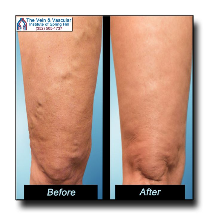 how to get rid of varicose veins on legs