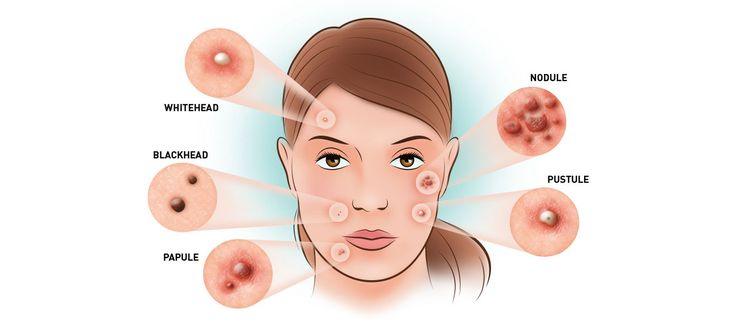How many types of acne are there? Learn about the different acne types and see pictures of whiteheads, blackheads, pustules, papules and nodules at Acne.com.