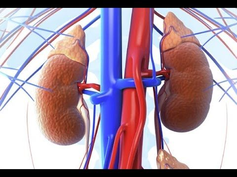 Treatment For Kidney Disease and Kidney Failure : Dialysis and Kidney Tr...