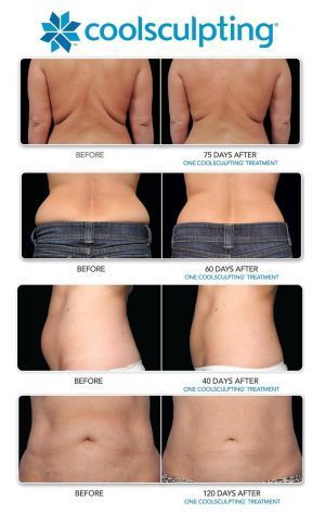 Coolsculpting Before and After. Call 425.644.5560 or visit us to find out more serenityrejuvenationcenter.com: