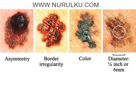 Kesehatan - Kumpulan Jenis Penyakit Pada Kulit – Di Update kali ini, blog Nurulku mau berbagi informasi pada kalian semua tentang 11 Jenis Penyakit Pada Kulit yang Perlu Anda Tau. 😀           (adsbygoogle = window.adsbygoogle    []).push();    Mungkin banyak orang menganggap penyakit kulit ad...