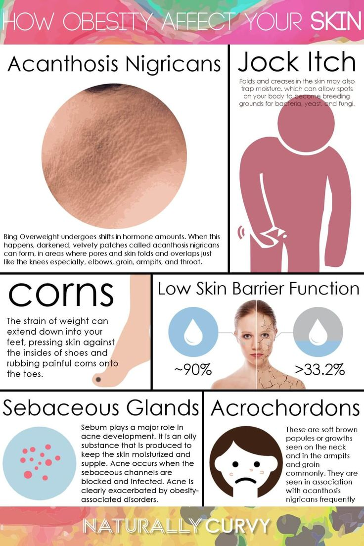 A body that carries an excessive plenty of fat undergoes changes in hormone levels. At these times, darkened, velvety patches known as acanthosis nigricans can form, in areas where pores and skin folds and overlaps just like the knees especially, elbows, groin, armpits, and throat. Patches might appear gray, brown, or dark. Weight loss can enhance the look of acanthosis nigricans.