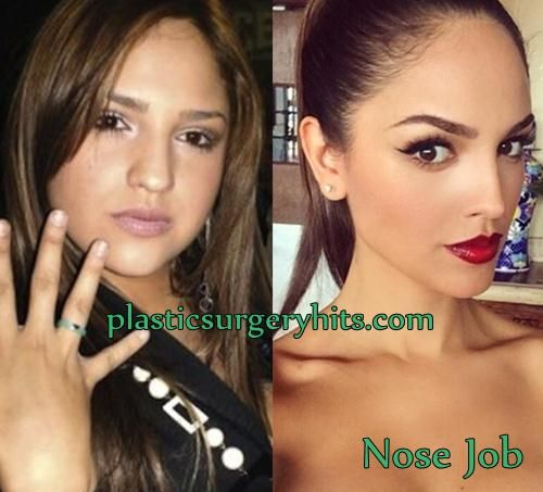 Wow Huge difference in before and after Noses. Eiza Gonzalez Plastic Surgery Nose Job