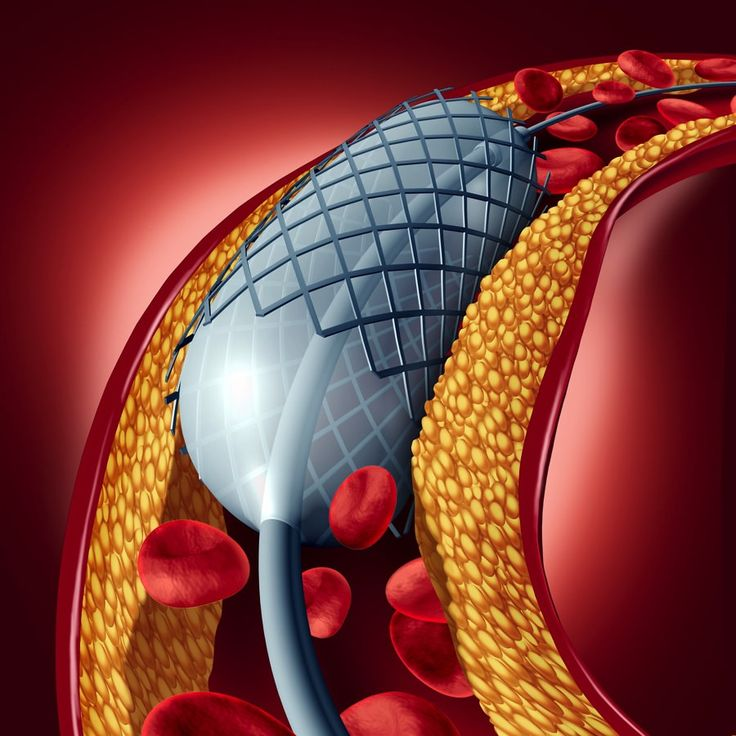 People who have chest pain after exercise often get an angiogram. If there is narrowing in an artery they may be told they need a heart stent. Is that true?