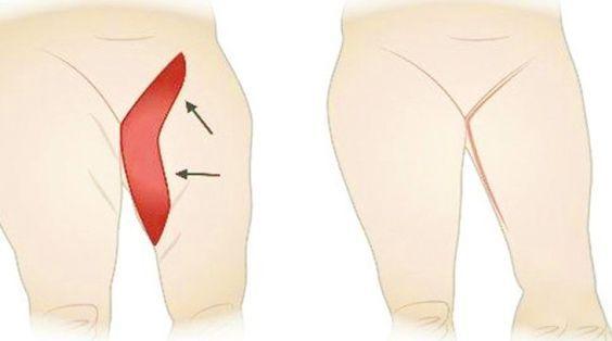 Voici comment vous débarrasser de la graisse de l'intérieur des cuisses !  lire la suite / http://www.sport-nutrition2015.blogspot.com