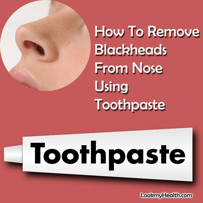 Blackhead Removal Glue
