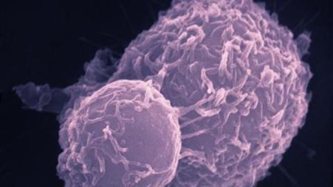 """Vědci našli """"ohromující"""" lék, který prý změní léčbu rakoviny"""