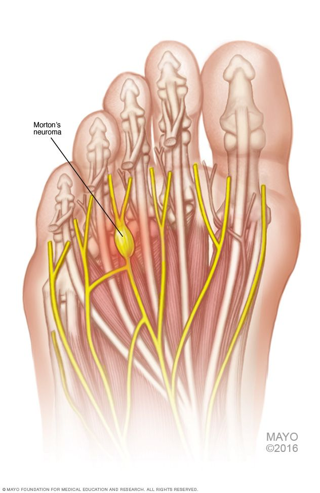 Best Shoes For Neuroma Pain