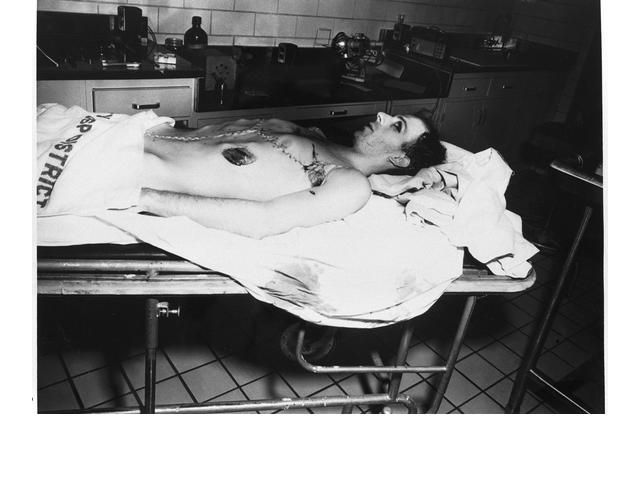 50 Insanely Gruesome Photos Of The Human Body From Actual ...