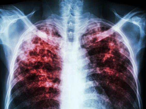 Ein Kind (3) in Südhessen hat offene Tuberkulose. Die Lungenkrankheit gilt eigentlich als weitgehend eingedämmt. Kindergärten werden nun