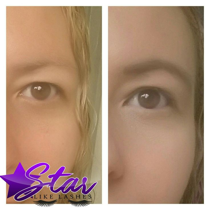 Before and after my Medium Brow pencil and gel   My #scar is just gone!!! Love it Www.starlikelashes.com