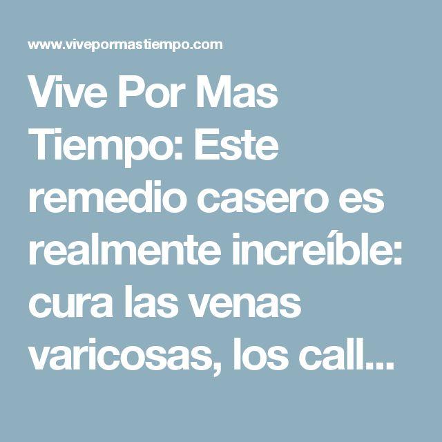 Vive Por Mas Tiempo: Este remedio casero es realmente increíble: cura las venas varicosas, los callos y los talones agrietados En tan sólo 10 días!