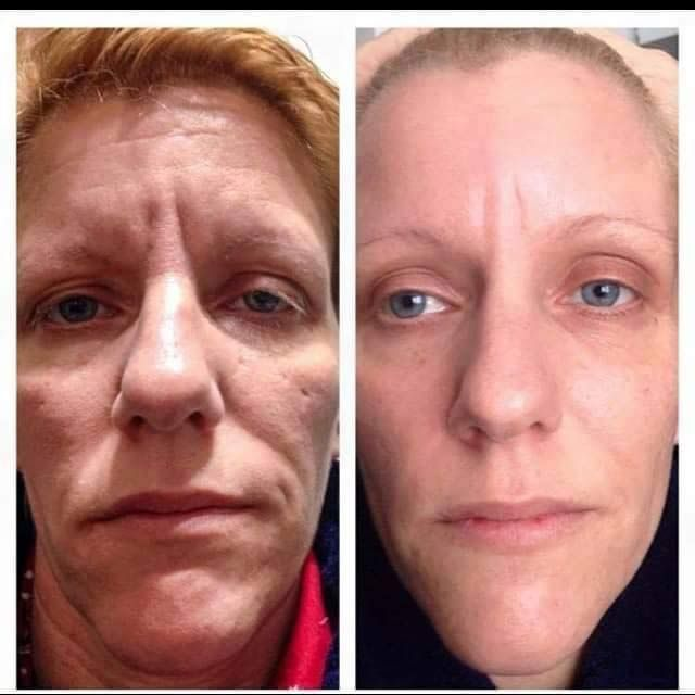 Jeunesse Instantly Ageless Reviews -Before After jeunesse-instantly-ageless-reviews-before-after-pictures/Ayoungeryounow.com