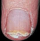 Nail Diseases and Disorders Brittle Nails are characterized by a vertical splitting or separation of the nail plate layers at the distal (free) edge of the nail plate. In most cases, nail splitting and vertical ridges are characteristic of the natural aging process. This nail problem is also the result of overexposure to water and chemical solvents such as household cleaning solutions. As we age, the nail bed's natural flow of oils and moisture is greatly reduced. This oil and moisture is…