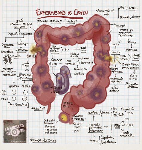 La Chuleta de Osler: Digestivo: Enfermedad inflamatoria intestinal - Colitis ulcerosa & Enfermedad de Crohn