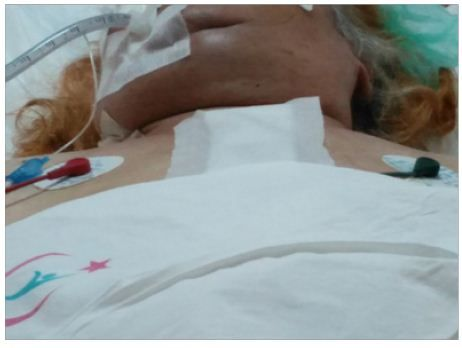 Superior Vena Cava Syndrome and Intensive Care Process Following Mitral Valve Surgery by Ibrahim Mungan*, Sema Turan, Mine Çavuş, Hayriye Cankar Dal, Sema Sarı and Ayşegül Özgök in Biomedical Journal of Scientific & Technical Research (BJSTR)  http://biomedres.us/fulltexts/BJSTR.MS.ID.000661.php